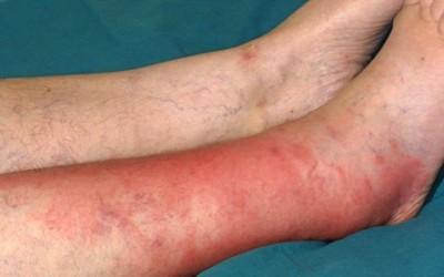 рожистое воспаление ноги при сахарном диабете лечение