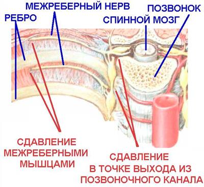 Как отличить невралгию от пневмонии