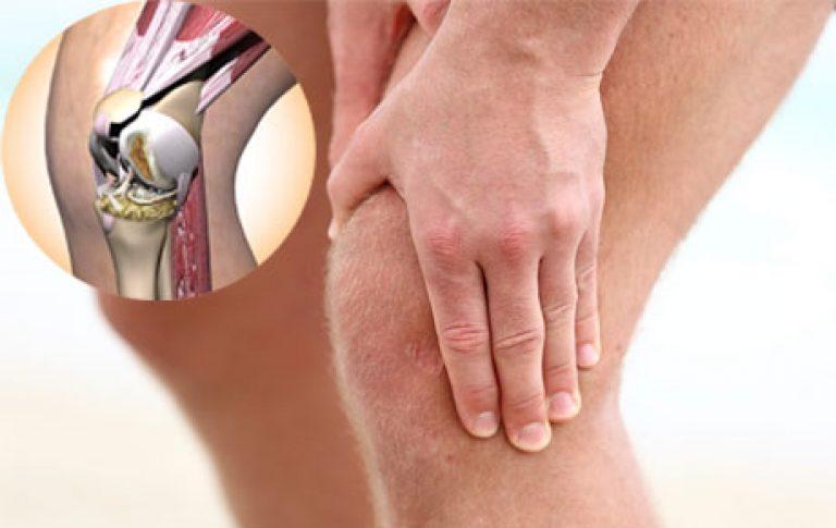 Признаки артрита коленного сустава и лечение фото