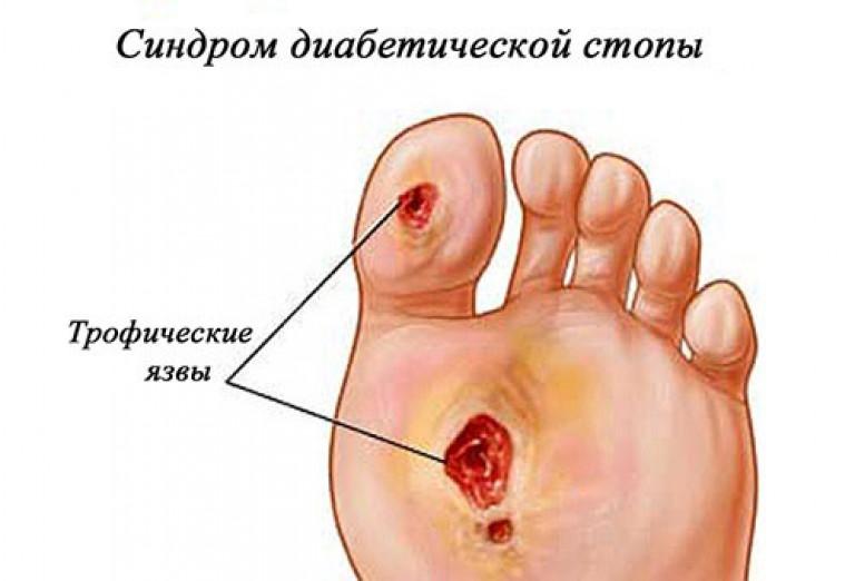 infektion i tandrot