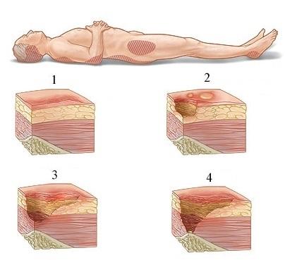 d6f2ed0b3d37d كيفية علاج استلقاء عميق في المنزل. كيف وكيفية علاج قرحة الضغط في ...