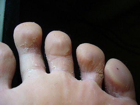 Трескается кожа между пальцами ног это грибок