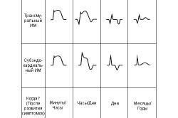 Вероятные осложнения и эффективные способы вылечить сердце после инфаркта
