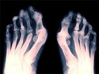 Воспаление суставов на ногах лечение снять воспаление — Сайт о лечении заболеваний суставов